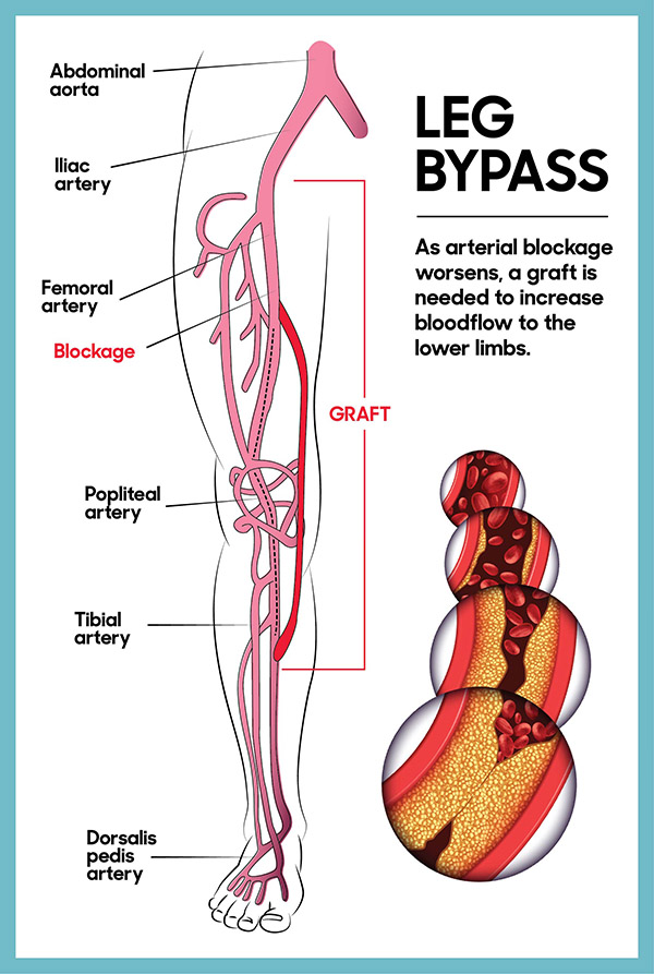 Illustration of a leg bypass