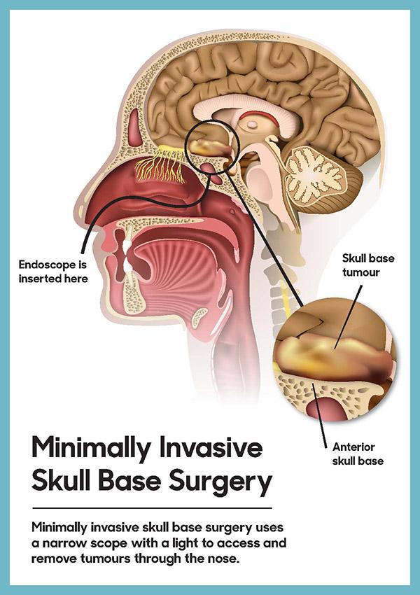 Illustration of a Minimally Invasive Skull Base Surgery.
