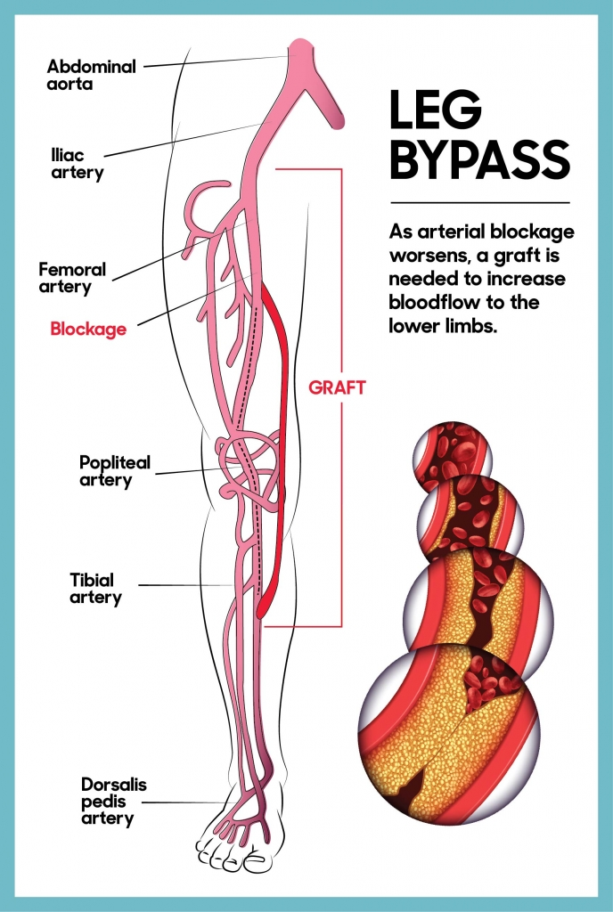 Leg bypass illustration: as arterial blockage worsens, a graft is needed to increase bloodflow to the lower limbs.